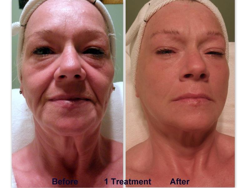 After 1 Treatment (45min)